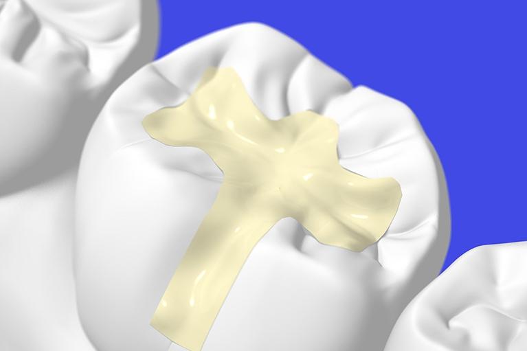 欠損した歯を白く高品質な素材で補う審美歯科