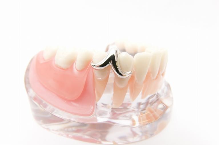当院の義歯治療