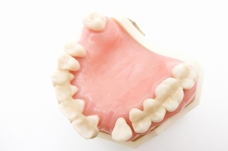歯の土台を弱らせる「歯周病」を治療・予防