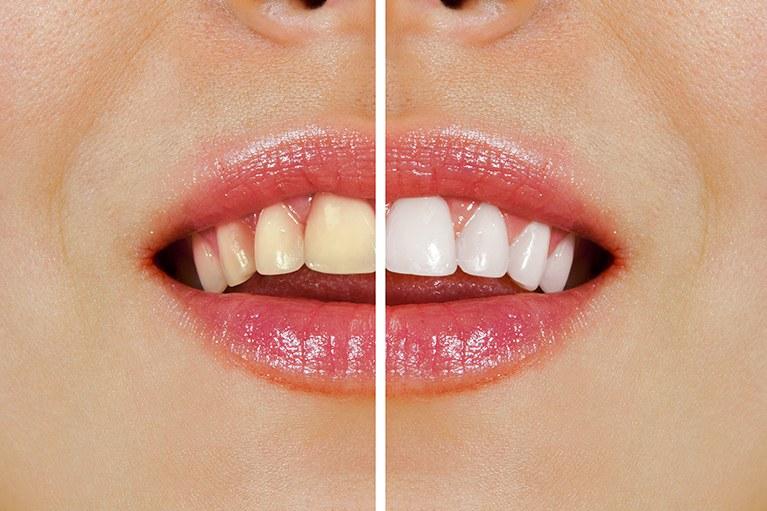 黄ばみやくすみが気になる歯を白くするホワイトニング